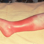 Cellulitis Causes, Symptoms, Treatment