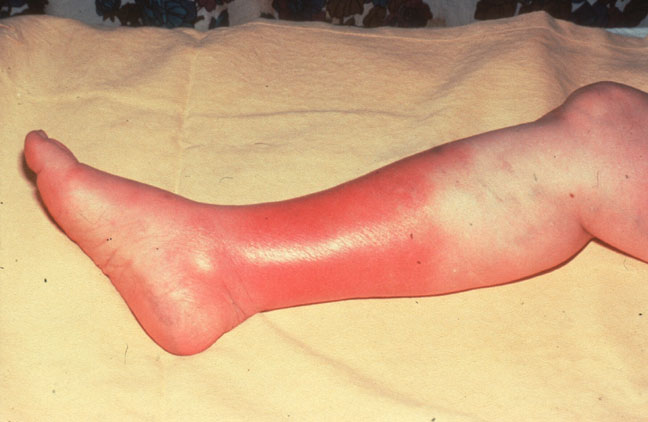 Cellulitis causes