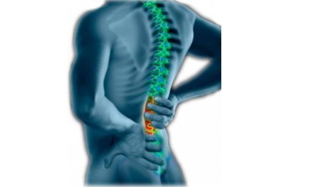 Pinched Nerve on Lower Back