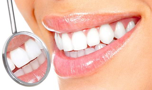Teeth Whitening Treatment at Home